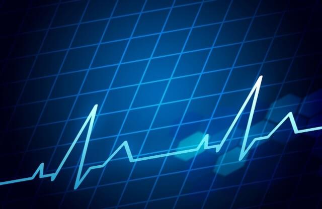 心電図のイメージ画像